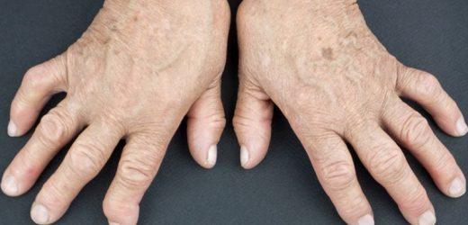 Rheumatoid arthritis patients remain unaware of CV risk