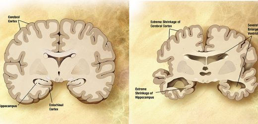 Researchers define type of Alzheimer's that affects people in their younger years