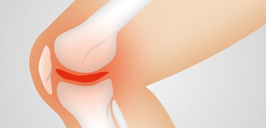 Study: Why people with knee osteoarthritis experience different kinds of pain