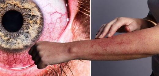 Coronavirus symptoms update: Five unusual warning signs