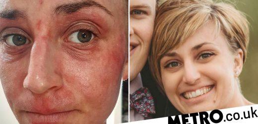 Woman whose eczema was so bad she needed sleeping pills swears by £8 cream