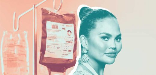 Chrissy Teigen Just Had 2 Blood Transfusions While Pregnant—Here's What's Going On