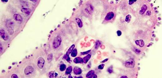 Repurposed anti-malarial compounds kill diarrheal parasite, study finds