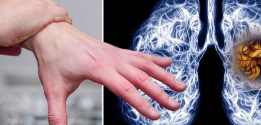 Do you have 'finger clubbing'? It could indicate you have lung cancer – what to look for