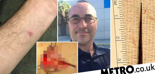 Man didn't realise he had giant thorn in his arm for four years