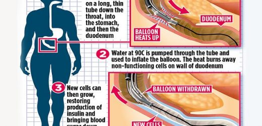 Hot balloon that frees diabetics from insulin jabs begins trials