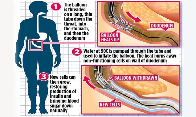Hot balloon that frees diabetics from insulin jabs begins trials