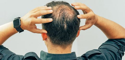 There's a new remedy for hair loss… but you'll need a strong stomach