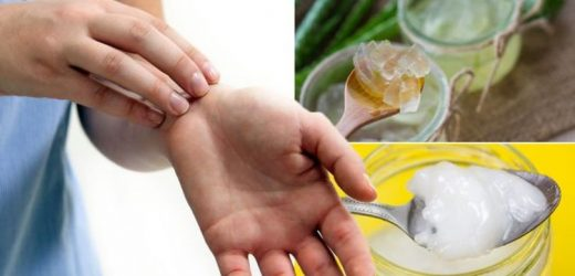 Eczema treatment: What are the best natural creams and moisturisers for dry skin?