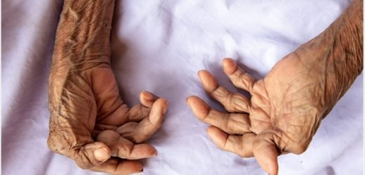 Does Reflexology and Massage Help with Arthritis?