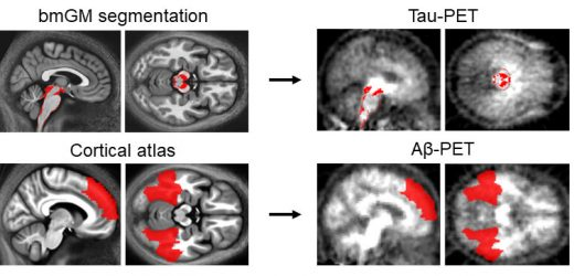 First observation of the early association between proteins linked to Alzheimer's disease