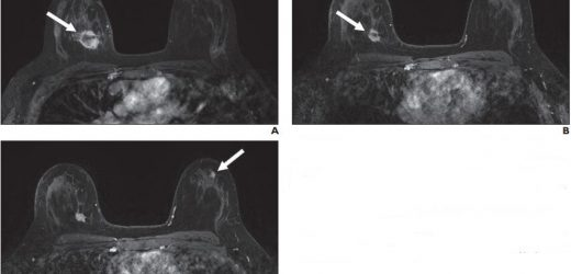New suspicious lesions on breast MRI in neoadjuvant therapy