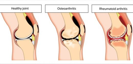 Osteoarthritis vs. Rheumatoid Arthritis – Understanding the Differences