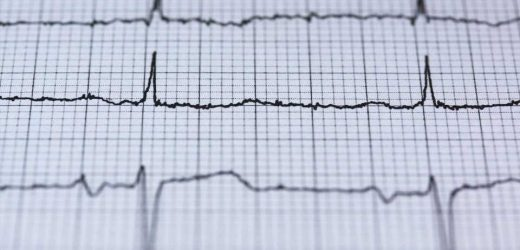 A study presents an algorithm that automates electrocardiogram recordings
