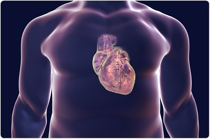 What is Valvular Heart Disease?