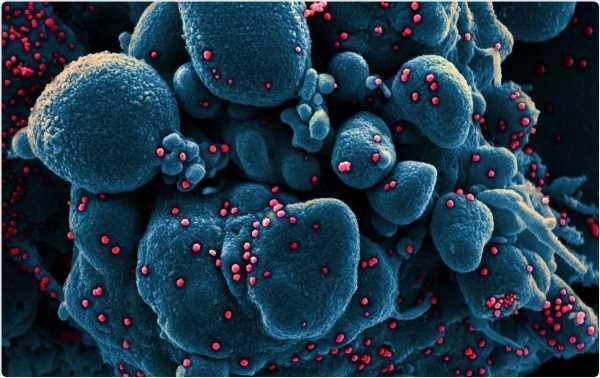 Apoptosis is an important mediator of pathogenesis in animal coronavirus infection