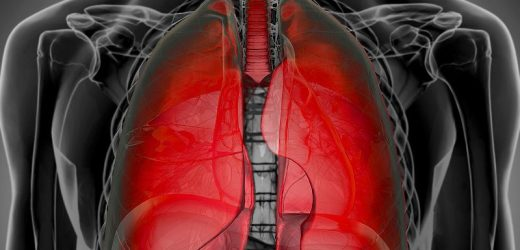 Study Clarifies Who Gets Post–COVID-19 Interstitial Lung Disease