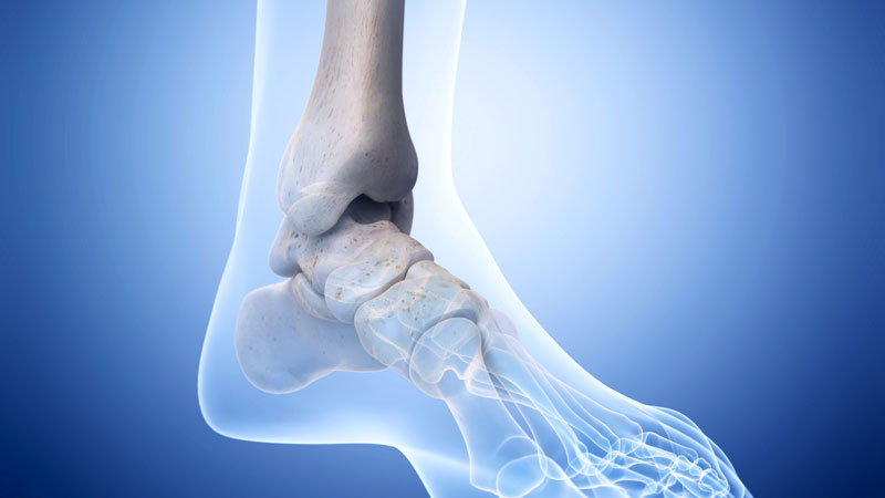 FDA Warns of STAR Ankle Implant Failures