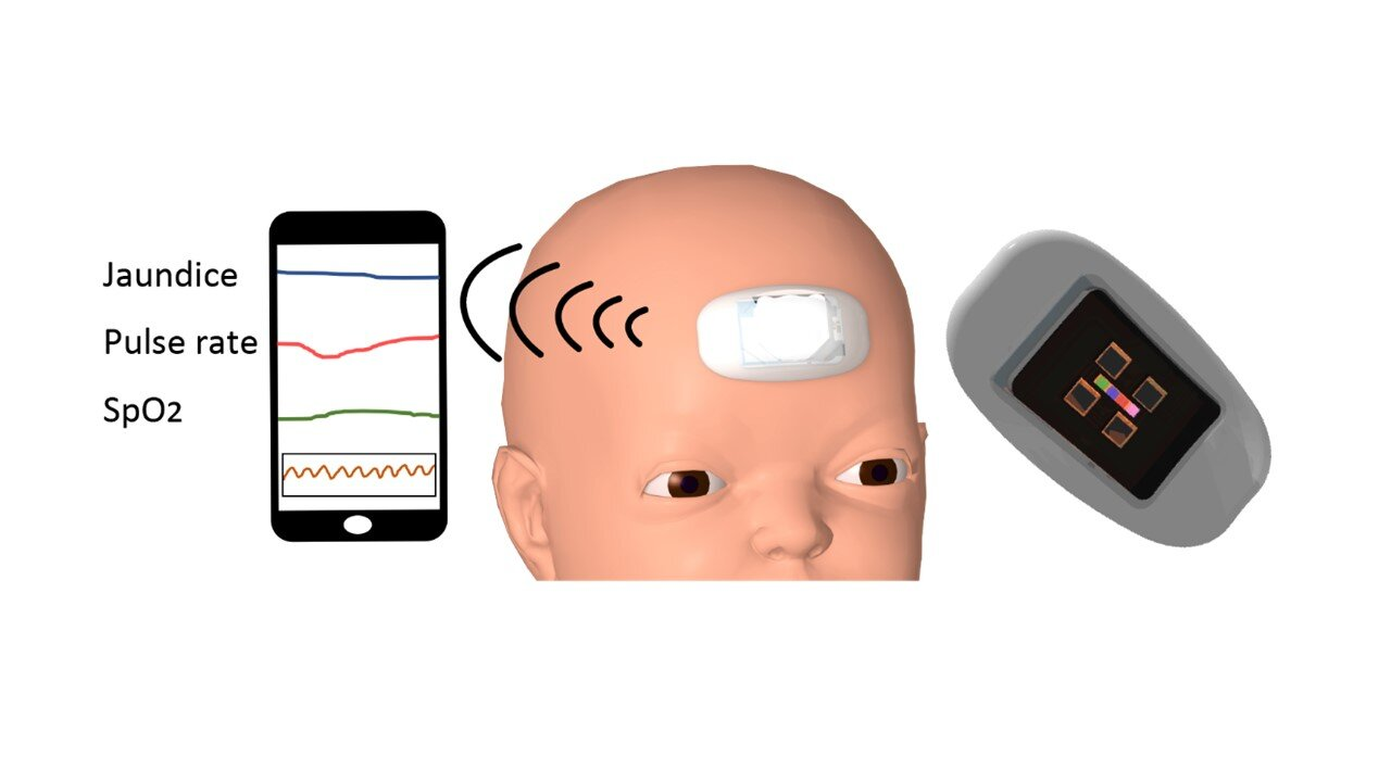 First wearable device can monitor jaundice-causing bilirubin and vitals in newborns