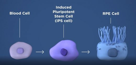 Induced pluripotent stem cells reveal causes of disease