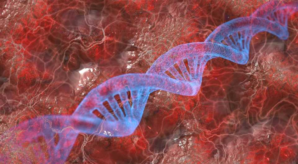 Artificial intelligence can accelerate clinical diagnosis of fragile X syndrome