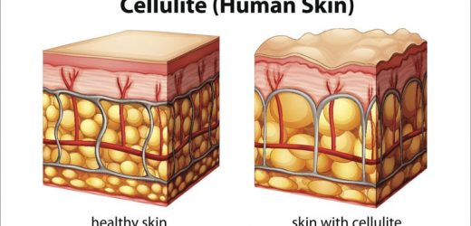 Enzymatic Injections Show Improvement in Buttock Cellulite