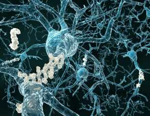 K162 molecule could inhibit β-amyloids ' toxicity associated with Alzheimer's disease