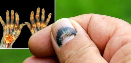 Arthritis symptoms: Nail changes are a 'strong predictor' of arthritis – what to look for