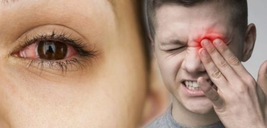 Covid symptoms: Link between eye inflammation and COVID-19 – expert weighs in