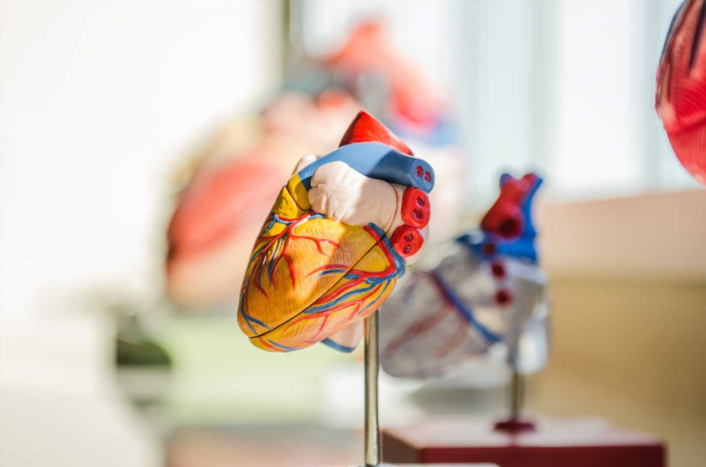 Nearly 1 in 5 patients who die from unexplained sudden cardiac death have suspicious gene