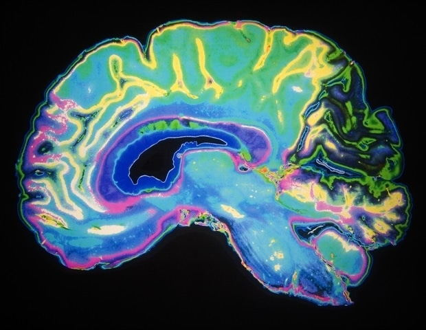 Researchers create first detailed atlas of the developing mouse brain