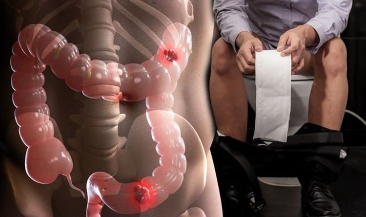 Bowel health: What is a normal colour and what signifies abnormality – expert weighs in