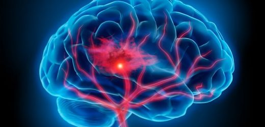 People display signs of a stroke up to 10 YEARS before it happens