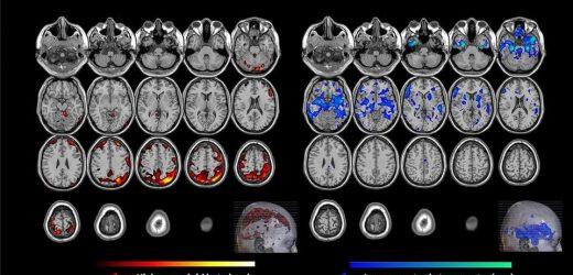 Amyloid beta and serotonin may be keys to predicting who develops late-life depression