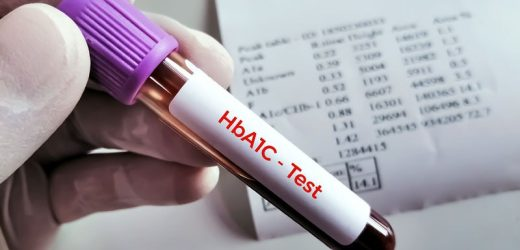 Optimum A1c to Prevent Events in Stroke Patients With Diabetes?