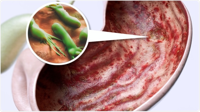 The Link Between Helicobacter pylori Infection and Stomach Ulcers